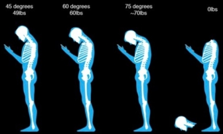 http://www.greaterwestphysio.com.au/healthy-blog/text-neck-how-your-phone-is-damaging-your-body