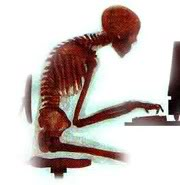 poor_postureskeleton-2